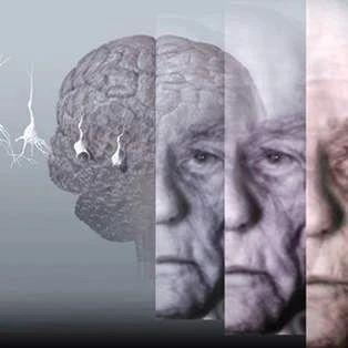 北京市启动老年人痴呆风险筛查Ⅱ期项目
